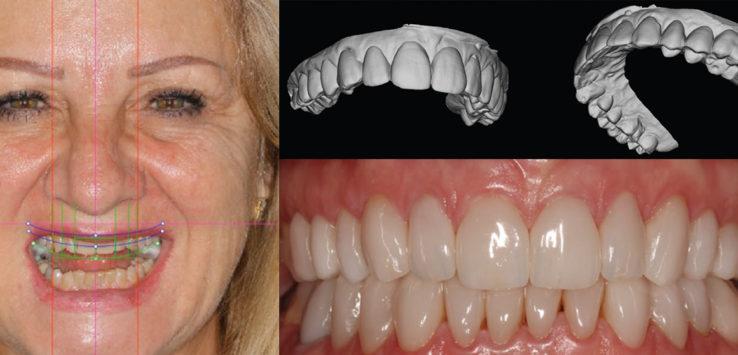 Case Report Full Mouth Rehabilitation Utilising Digital Smile Design Dsd Denti Pro Blog